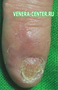 Лечение псориаза ногтей в домашних условиях все способы